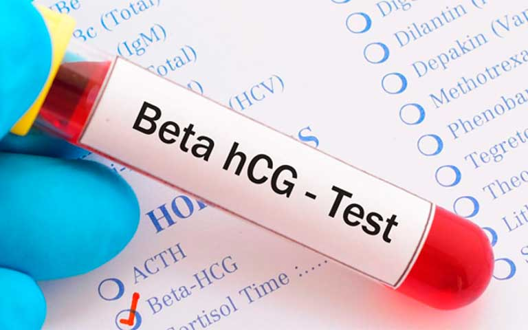 prueba sanguínea de embarazo